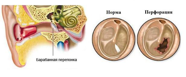 с холестеатомой уха с перфорацией вверх